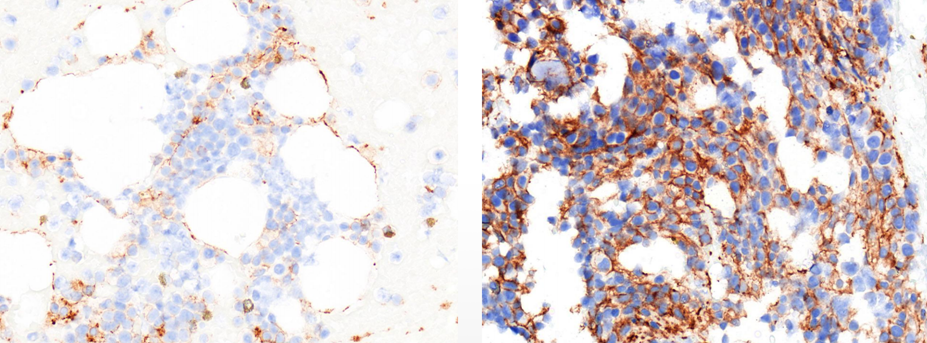 Evidence of increased PD-L1 expression pre (left) and post (right) treatment